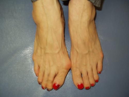 外反母趾」を歩き方で改善