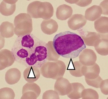 血液の中にいる免疫細胞